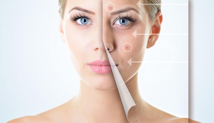 Es gibt die Veranlagung zu Neurodermitis, trockener Haut oder Ekzemen