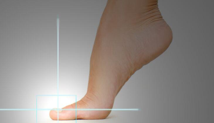 Kosmetische Laserbehandlungen: Nagelpilzentfernung